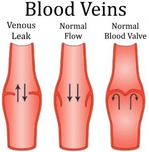 venous-leak-diagram