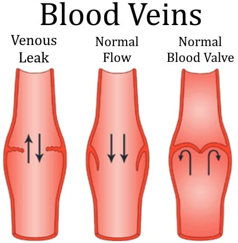 Venous Leak